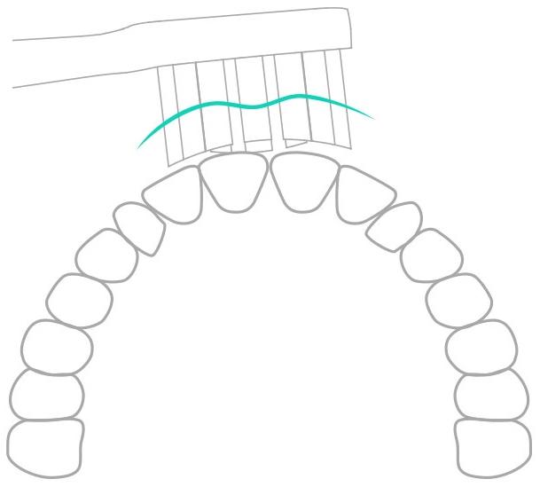 Xiaomi Mi Electric Toothbrush pót fej